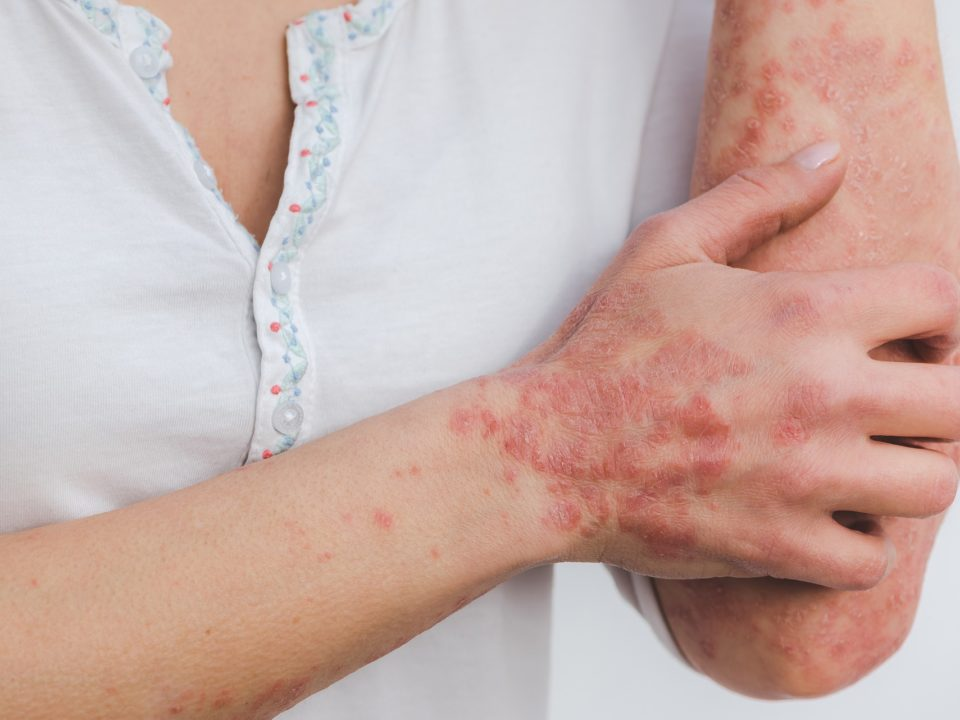 Treatment of psoriasis at Hera Medical Center