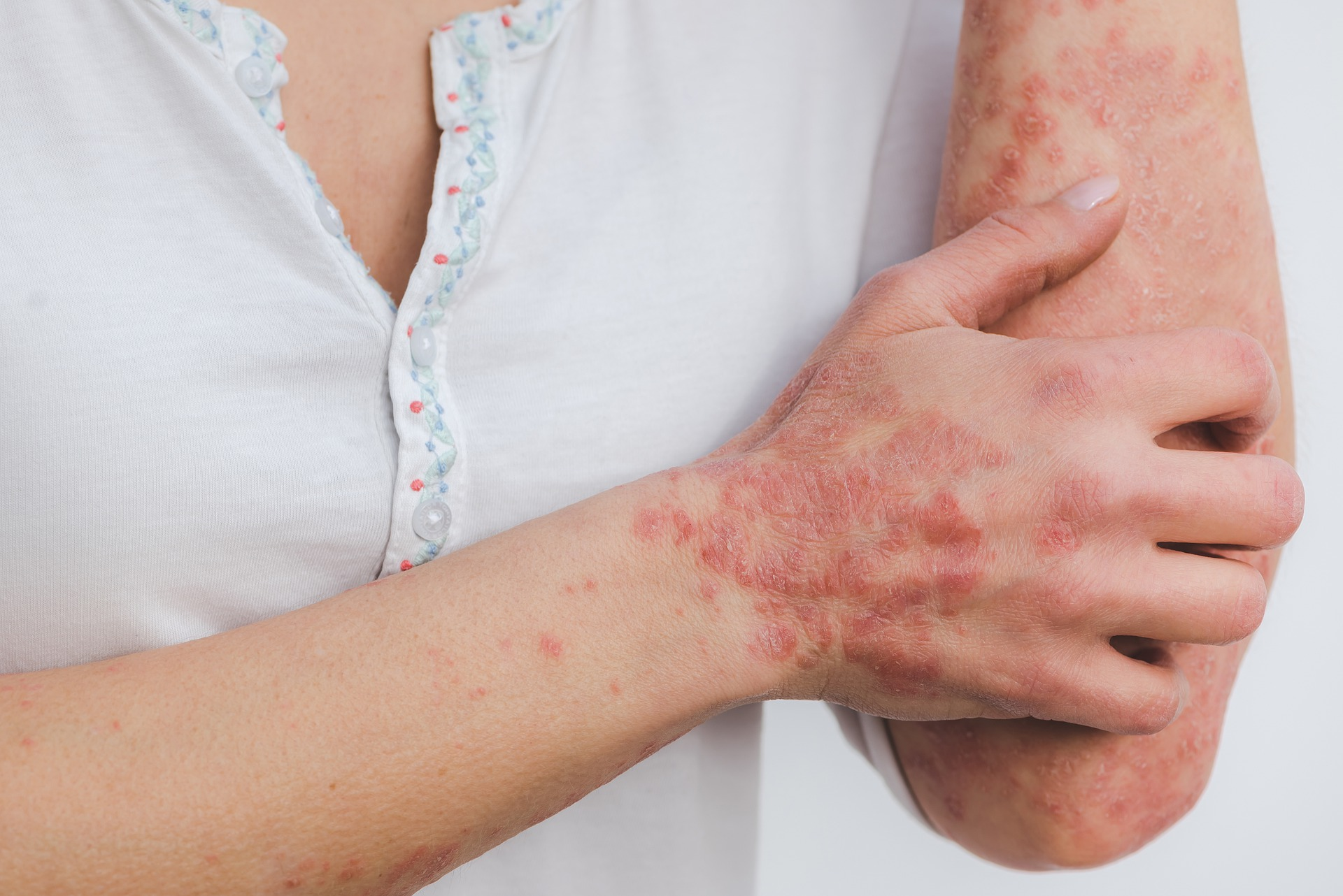 Treatment of psoriasis at Hera Medical Center